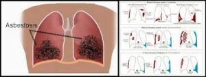 Obat Tradisional Mengobati Asbestosis