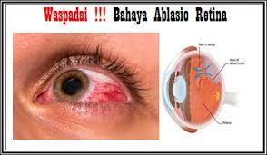 Cara Mengobati Penyakit Mata Ablasio